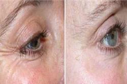 आंखों के अासपास की झुर्रियों को कम करते हैं ये असरदार नुस्खे