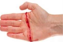 चोट लगने पर नहीं रूक रहा खून का बहाव, अपनाएं ये तरीके