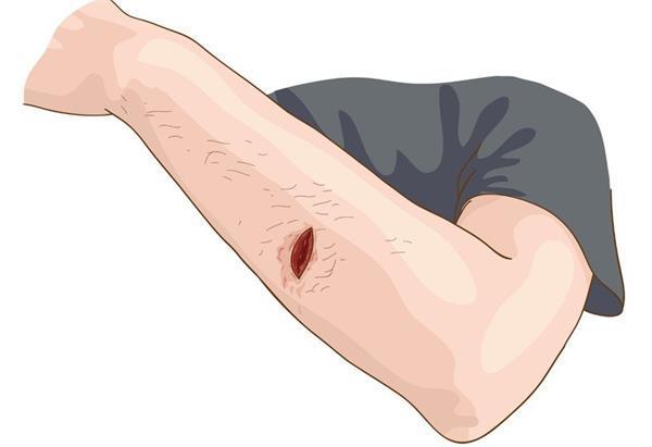 घर पर घाव की देखभाल करने के काम आएगी यह एप