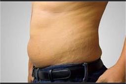 Men Special: पुरुष भी हटाएं त्वचा पर पड़े स्ट्रेच मार्क्स