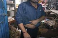 रंगदारी न देने पर बदमाशों ने BJP नेता पर किया बम से हमला