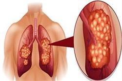 लंग कैंसर के ये 8 संकेत दिखते ही तुरंत शुरू करवाना चाहिए इलाज