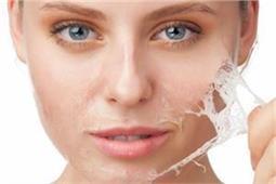 Skin Peeling के लिए बड़े असरदार हैं ये नुस्खे