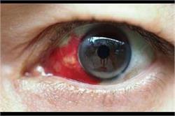 क्या है Bleeding Eye Fever? लक्षणों को पहचानकर जल्द करवाएं इलाज!