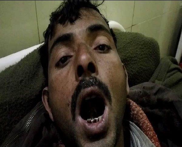 यूपी में बेखाैफ बदमाशः काेर्ट में गवाही न दे सके इसलिए काट ली युवक की जीभ