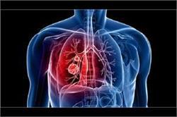 लंग कैंसर जैसी बीमारी को इस व्यक्ति ने दी नैचुरल तरीके से मात