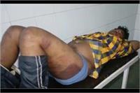 फर्जी मामले में युवक को पीट-पीटकर पुलिस ने किया अधमरा, सिगरेट से जलाया पैर