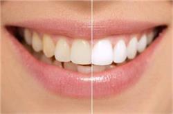 एक मिनट का यह काम, पीले दांतों को बना देगा मोतियों जैसे सफेद
