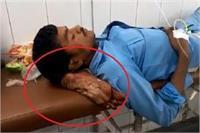 धरती के भगवान ने पेशे काे किया कलंकित, कटे पैर काे बना दिया मरीज का तकिया
