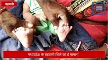 एक बच्ची के 25 उंगली, दो पैर और एक हाथ में 15 की जगह 20 उंगलियां, लोग मान रहे करिश्मा