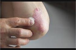स्किन प्रॉब्लम सोरायसिस को न करें नजरअंदाज, एेसे रखें खुद का बचाव
