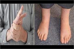 सर्दियों में सूज जाती हैं हाथ-पैर की उंगलियां तो अजमाएं ये टिप्स