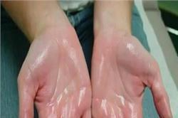 हाथों-पैरों पर ज्यादा पसीना आता है तो आजमाएं ये तरीके