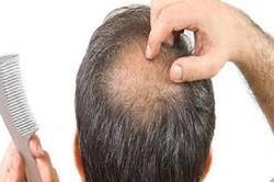 सिर पर फिर से लहराएंगे बाल, गंजेपन के सस्ते और असरदार नुस्खे