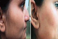 चेहरे के अनचाहें बालों से मिलेगा छुटकारा, अपनाएं ये असरदार तरीका
