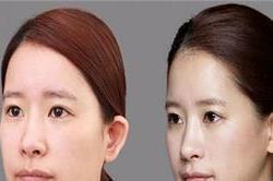 सर्जरी के बिना ही चौड़ी नाक को दें परफैक्ट शेप