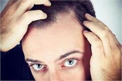 Temple Hair के गंजेपन को इन नैचुरल तरीकों से करें दूर