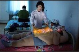 डाइट या व्यायाम नहीं, यहां शरीर पर आग लगाकर कम किया जाता है मोटापा