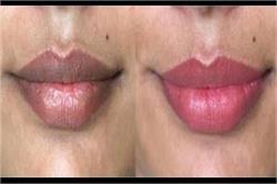 Best Tips: सिगरेट की वजह से काले पड़े होंठों को दोबारा बनाएं यूं गुलाबी