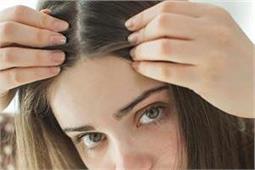 हेयर कलर से नहीं, नैचुरल तरीके से बालों को करें काला