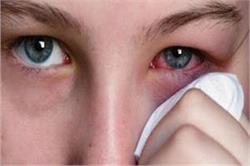 आंखों की लालगी और भारीपन का तुरंत इलाज करते हैं ये 5 नुस्खे