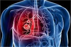 ये 6 लक्षण करते हैं लंग कैंसर की ओर इशारा!