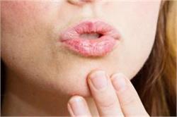 फटे होंठों की परेशानी को मिनटों में दूर करेंगे ये 10 घरेलू टिप्स