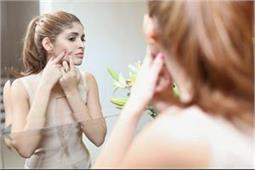 शादी के बाद क्यों होते हैं चेहरे पर मुंहासे?