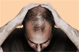 ये तिब्बती नुस्खा गंजे सिर पर भी उगा देगा बाल, सिर्फ 1 महीना करे इस्तेमाल!
