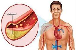 शरीर में कितनी होनी चाहिए कोलेस्ट्रॉल की मात्रा और कैसे करें इसे कंट्रोल