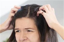 Monsoon Tips: पसीने की वजह से सिर में होती है खुजली तो क्या करें?