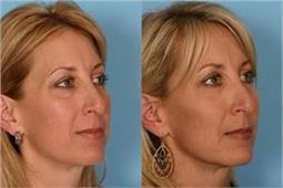 चेहरे से एक्सट्रा फैट कम करने के आसान टिप्स और एक्सरसाइज