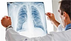प्रदूषण और खराब लाइफस्टाइलने बढ़ाया फेफड़े के कैंसर का...