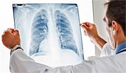 प्रदूषण और खराब लाइफस्टाइलने बढ़ाया फेफड़े के कैंसर का खतरा: RGCIRC