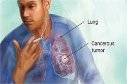 फेफड़ों के कैंसर का कारण, लक्षण और रोकथाम