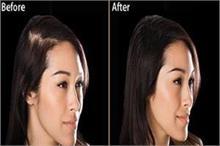 Dermatologists ने दी 6 शैंपू लगाने की सलाह, बालों का झड़ना...