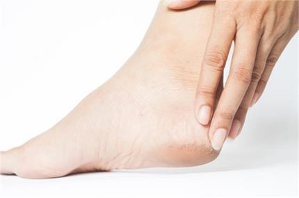 नींबू के एक टुकड़े से दूर होगी पैरों की छोटी-छोटी समस्याएं