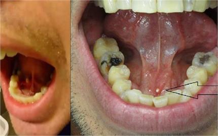 सिर्फ किडनी ही नहीं, जानिए मुंह में होने वाली पथरी के कारण और लक्षण