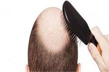 गंजेपन का पक्का इलाज, नहीं झड़ेंगा एक भी बाल!