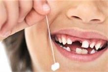 दूध के दांत भी बचा सकते हैं बच्चे की जिंदगी