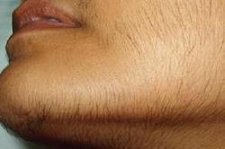 इन असरदार उपायों से हटाएं ठुड्डी के अनचाहे बाल
