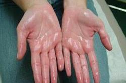 हाथों-पैरों पर आता है बहुत ज्यादा पसीना तो जरूर अपनाएं ये Tips