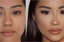 बिना सर्जरी के नाक को बनाएं सुडौल, जानिए कैसे