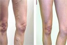 क्या आपको भी है Varicose veins समस्या तो करें ये घरेलू उपचार
