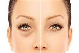 बिना साइड-इफेक्ट, चम्मच से दूर करें आंखों की सूजन