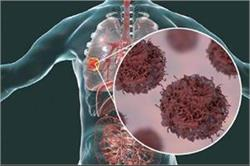टी सेल करेंगे कैंसर का इलाज, नई खोज को मिला नोबेल पुरस्कार