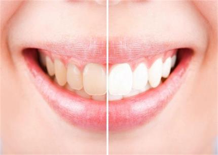 दांतों को सफेदी के साथ मजबूती भी देगा यह नुस्खा- Nari
