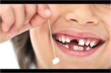 दूध के दांत स्टोर करने से होगा कैंसर से बचाव!