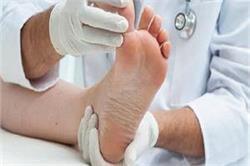 बैठे-बैठे पैर हिलाने की आदत बना सकती है इस बीमारी का शिकार