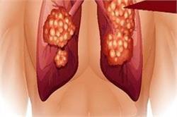 लंग कैंसर के ये संकेत दिखते ही तुरंत शुरू करवाना चाहिए इलाज